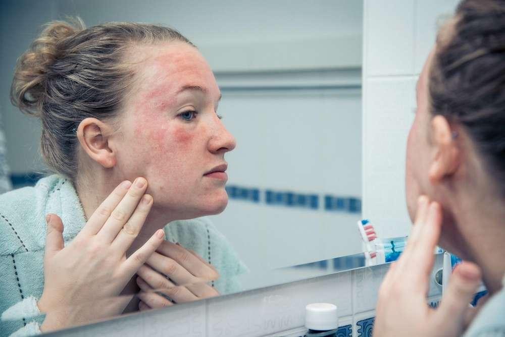 Почему на тренировке краснеет лицо и как от этого избавиться?