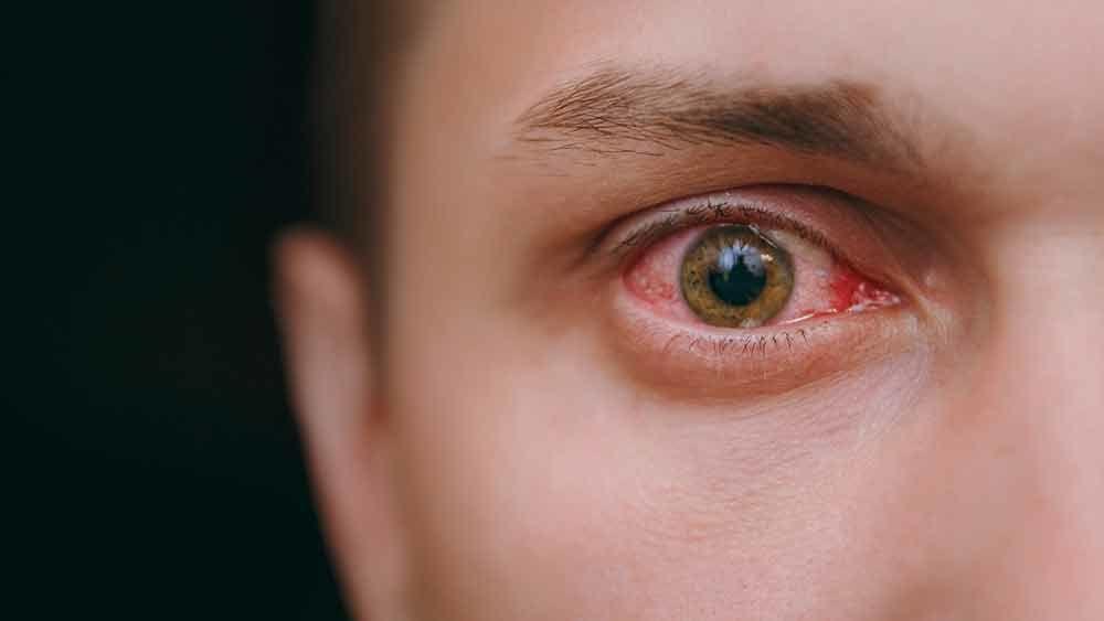 Глаза заболевания картинки